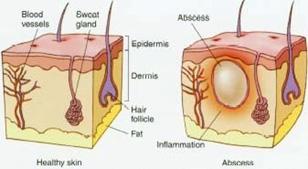 hs-inflammation