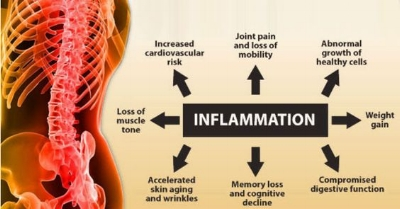 Sugar and inflammation