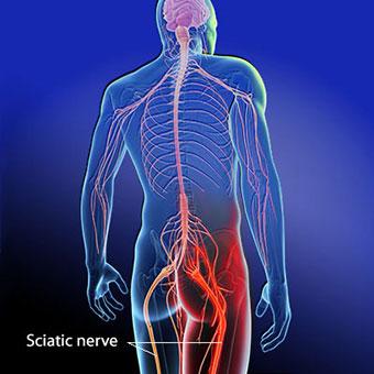sciatica-sciatic-nerve
