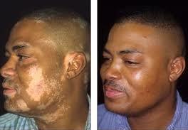 ginkgo-biloba-vitiligo