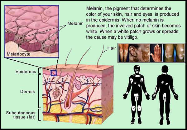 melanocytes-vitiligo