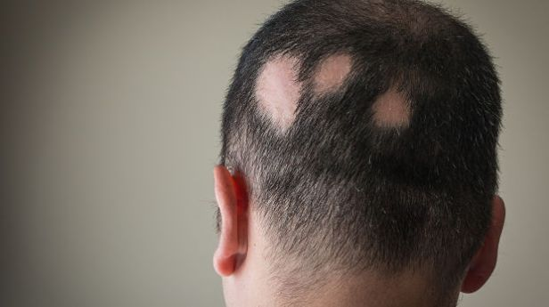 Does Vitiligo Lead To Hair Loss Naturwarriors