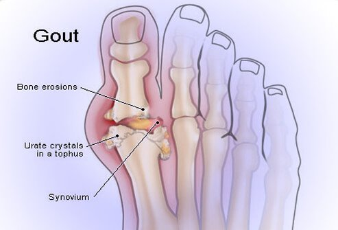 gout_illustration_
