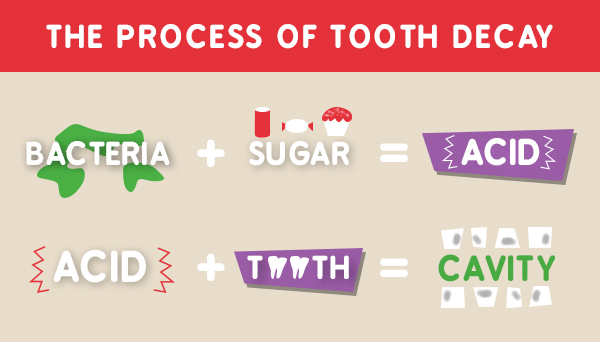 Process-of-Tooth-Decay