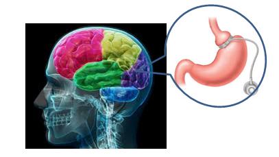 Brain-Stomach-Hypnosis (1)
