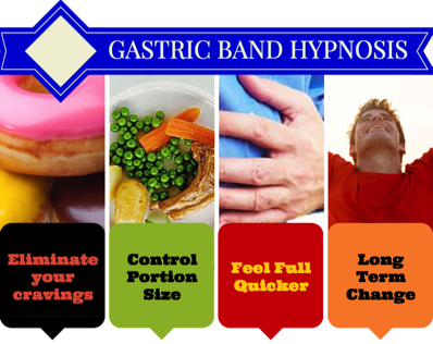 gastric band hypnosis success