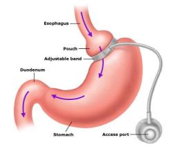 gastric_band_hypnosis_surgery