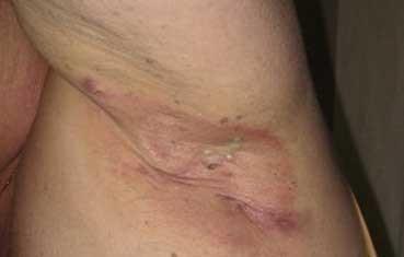 Hidradenitis-suppurativa_obese