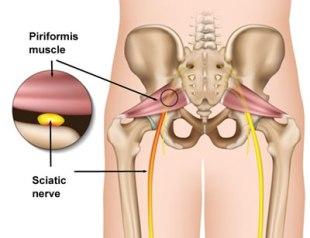 piriformis-syndrome
