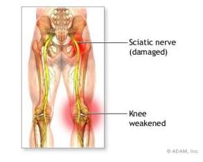 sciatica-triggers.jpg