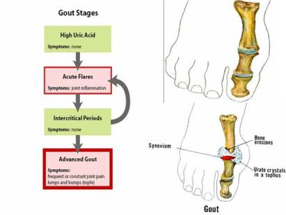 drugs that cause gout