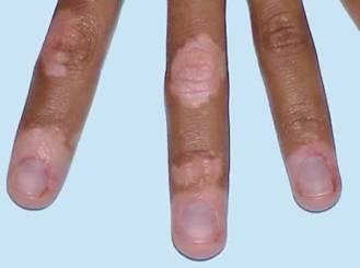 0-stop-vitiligo-spreading