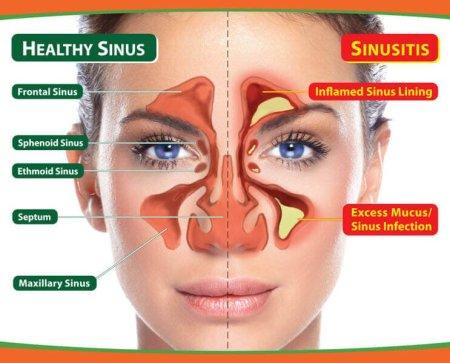 sinusitis-vitamin-c