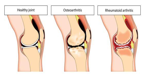 arthritis-hidradenitis-suppurativa
