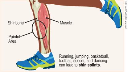 preventing-shin-splints