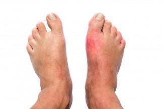 gout-remedies