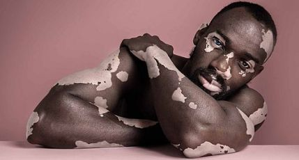vitiligo-causes